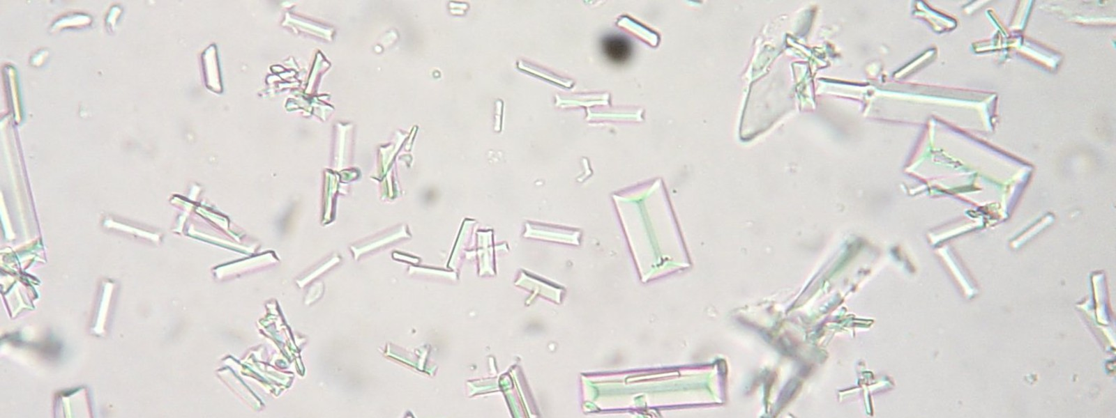 Struvite Crystals in Urine